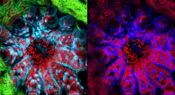Confocal Microscope Turns Science into Art